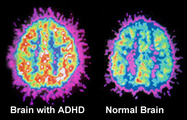 A Brain with ADHD and a Normal Brain